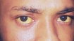കോഴിക്കോട്ട് മഞ്ഞപ്പിത്തം പടരുന്നു: ജാഗ്രതാ നിര്ദേശം, പനങ്ങാടും കുറുവങ്ങാട്ടും മഞ്ഞപ്പിത്തമെന്ന്!!