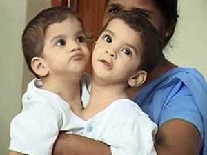 Girl Who Was Separated Conjoined Sister Dies