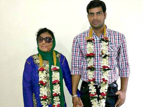 Acid Attack Survivor Sonali Mukherjee Ties Knot With Facebook Friend