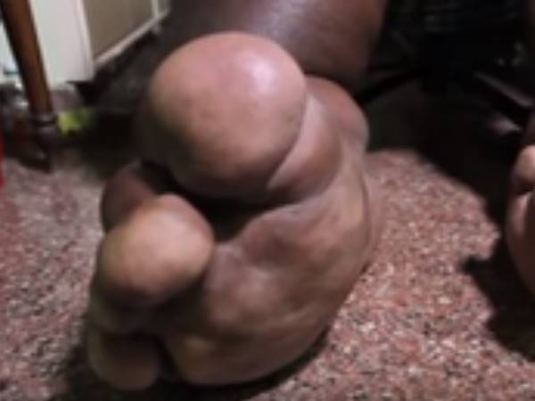 Man S Leg As Heavy As Newborn Elephant