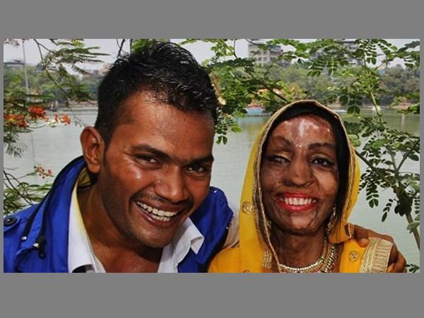 ആസിഡ് ആക്രമണം,17 സര്ജറികള്,മുംബൈ പെണ്കുട്ടിക്ക് പുതുജീവിതം നല്കിയത് റോങ്നമ്പര്!!