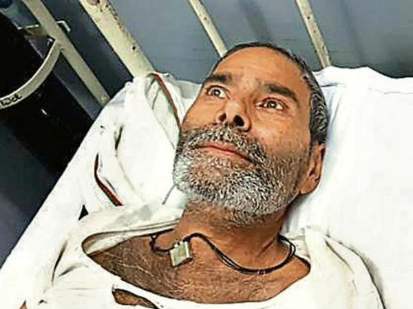 In Pics Rajasthan Man Has 75 Pins Embedded In Body Doctors Baffled