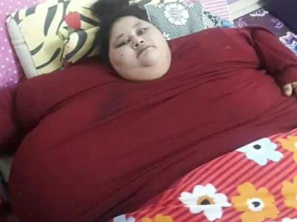 Eman Ahmed Worlds Heaviest Woman Undergoing Treatment Passes Away