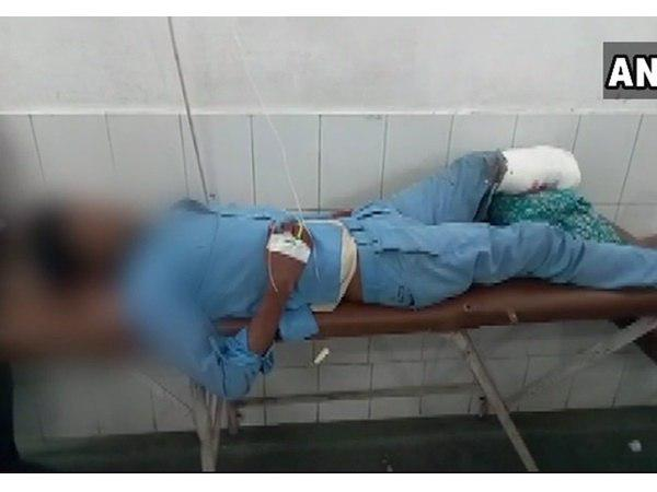 Up Doctors Allegedly Use Mans Severed Foot As Headrest After Surgery