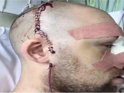 Cricketer Head Injury