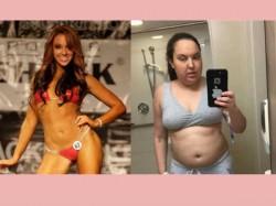 Bikini Model Shares Her Experience For Cancer Awareness